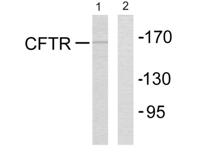 CFTR (Ab-737) Antibody