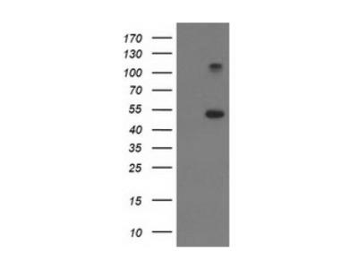 TUBB4 antibody