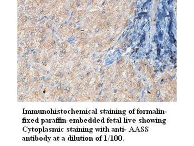 AASS Antibody
