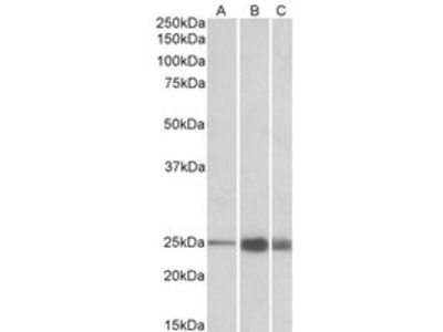Goat anti-TNNI2 (aa83-95) Antibody