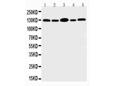 Anti-PROM1 antibody