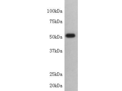 Beta-Tubulin Antibody