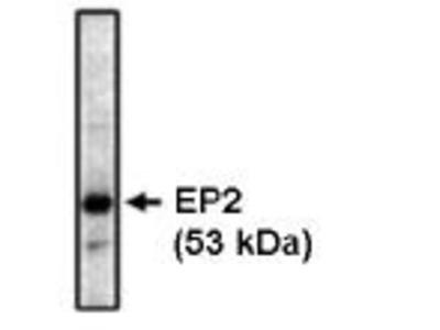 Prostaglandin-E2 receptor EP2
