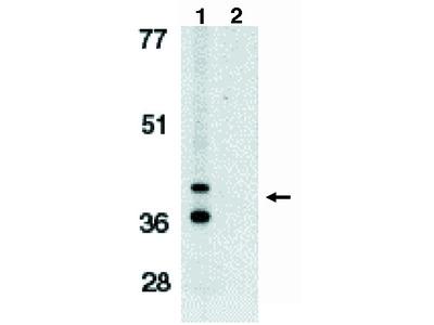 Bnip3L (IN) (nix) (bcl 2 family)