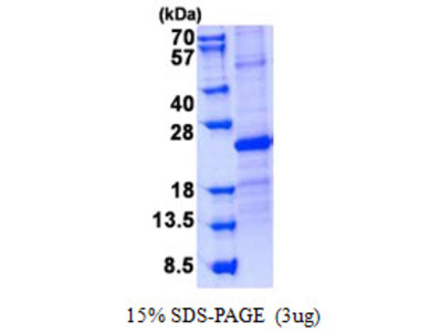 SOSTDC1, 24-206aa, Human, His tag, E Coli