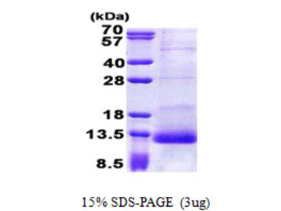 SPINK1, 24-79aa, Human, His tag, E Coli