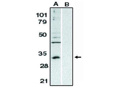 bcl 10 (NT) (CipER, CLAP)