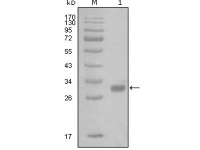 PAR1 antibody