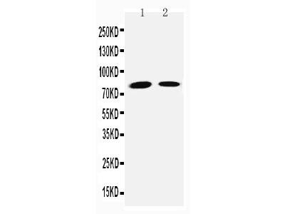 Anti-Transglutaminase 2 antibody