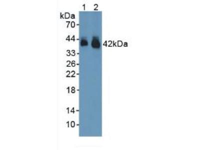 Polyclonal Antibody to Connexin 43 (CX43)