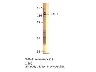 Adenylate Cyclase 3 (AC3)