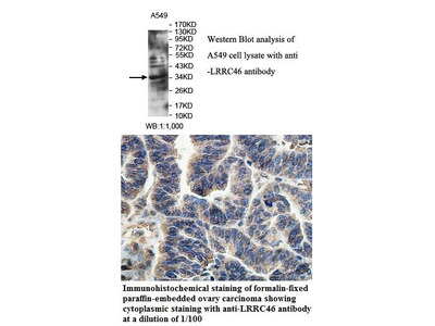 Anti-LRRC46 Antibody