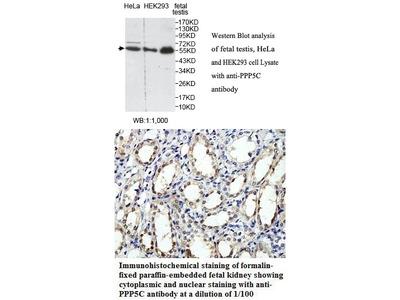 Anti-PPP5C Antibody