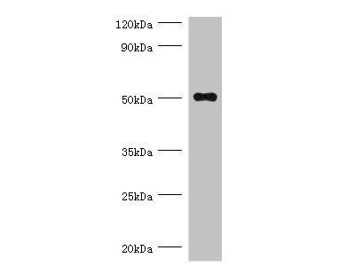 Rabbit anti-human Trimethyllysine dioxygenase, mitochondrial polyclonal Antibody