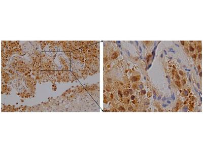 Anti-p16 Antibody