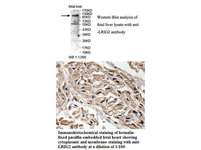 Anti-LRIG2 Antibody