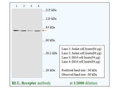 Leukotriene B4 Receptor (BLT1 Receptor) Antibody