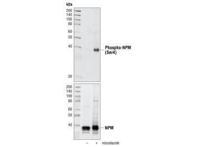 Phospho-NPM (Ser4) (D19C1) XP ® Rabbit mAb