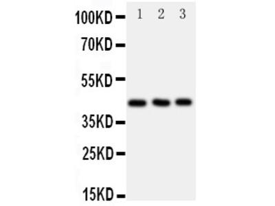 Anti-CCR9 antibody