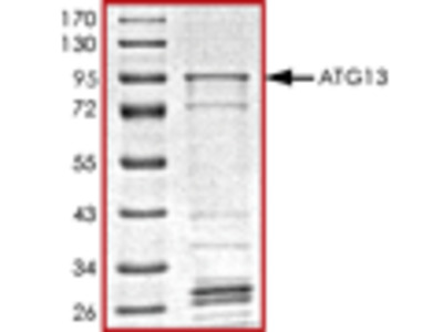 ATG13 recombinant protein
