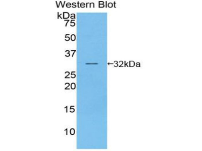 Polyclonal Antibody to Phosphoinositide Kinase, FYVE Finger Containing (PIKFYVE)