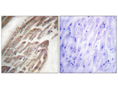 NFAT2 (Phospho-Ser294) Antibody