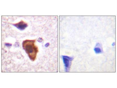 CD88/C5aR (Ab-338) Antibody
