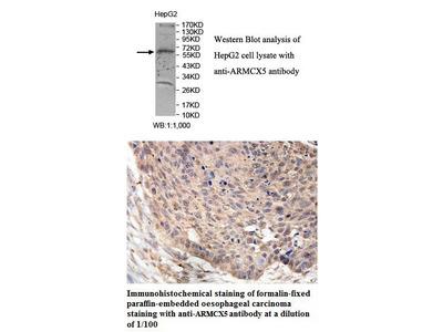 Anti-ARMCX5 Antibody