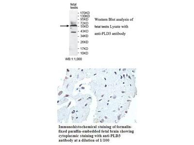Anti-PLD3 Antibody