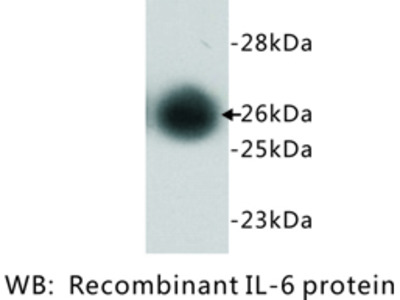 Anti-Interleukin 6, IL-6 antibody