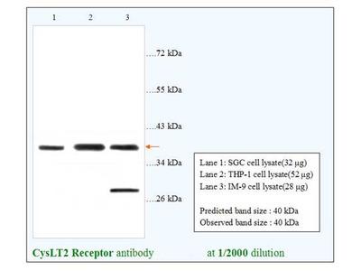 CysLT2 Receptor Antibody