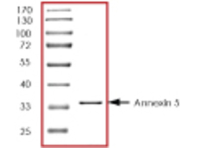 Annexin 5 recombinant protein