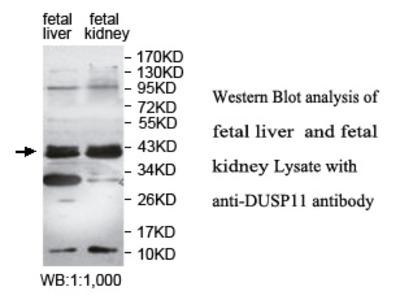 Anti-DUSP11 Antibody