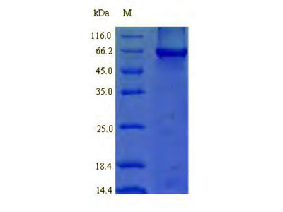 Recombinant Human Signal recognition particle 54 kDa protein (SRP54)