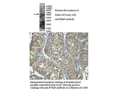 Anti-PNKP - PNK Antibody