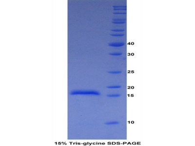 Recombinant A Disintegrin And Metalloproteinase With Thrombospondin 2 (ADAMTS2)