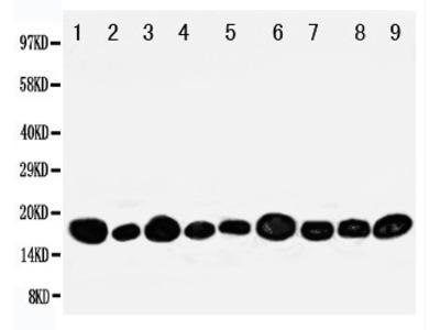 Anti-NME2 antibody