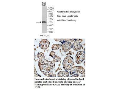Anti-SNAI2 Antibody