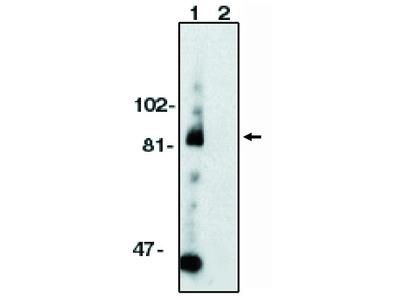 ADAM 10 (CT) (kuz) (TNFa converting enzyme)