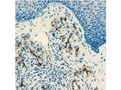 CD34, Monoclonal Antibody, Mouse
