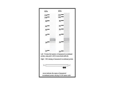 LARS2 antibody