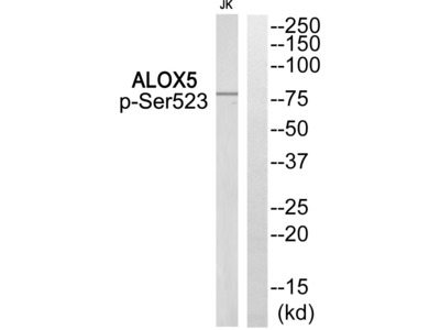 ALOX5 (Phospho-Ser523) Antibody