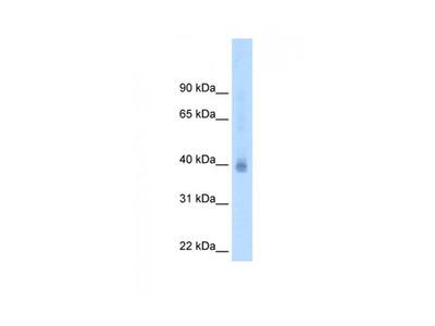 NR2F2 antibody