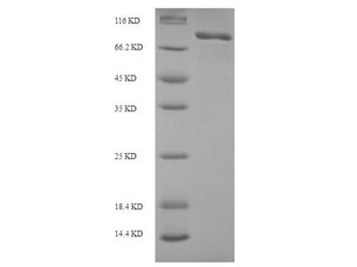 Recombinant Human Macrophage mannose receptor 1 (MRC1),partial