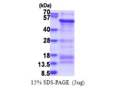 SAMSN1, 1-373aa, Human, His tag, E Coli