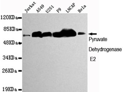 Mouse monoclonal Pyruvate Dehydrogenase E2 antibody