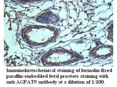 AGPAT9 Antibody