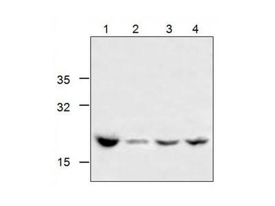 Influenza A Hemagglutinin antibody