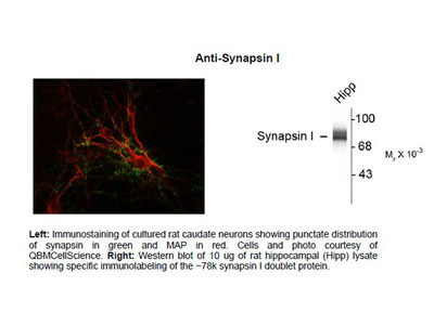 Anti-Synapsin Antibody Products from MyBioSource com | Biocompare com