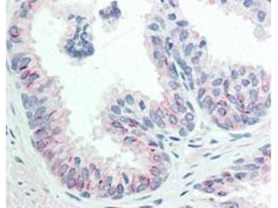 Anti-Phospho S473 AKT Antibody